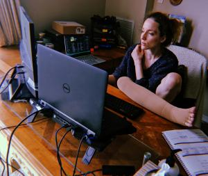 Alexa sits at her desk, with her leg up on the desk in an attempt to elevate.