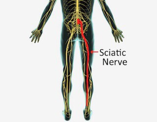 Sciatica, piriformis syndrome, back pain, leg pain, chiropractic, massage therapy