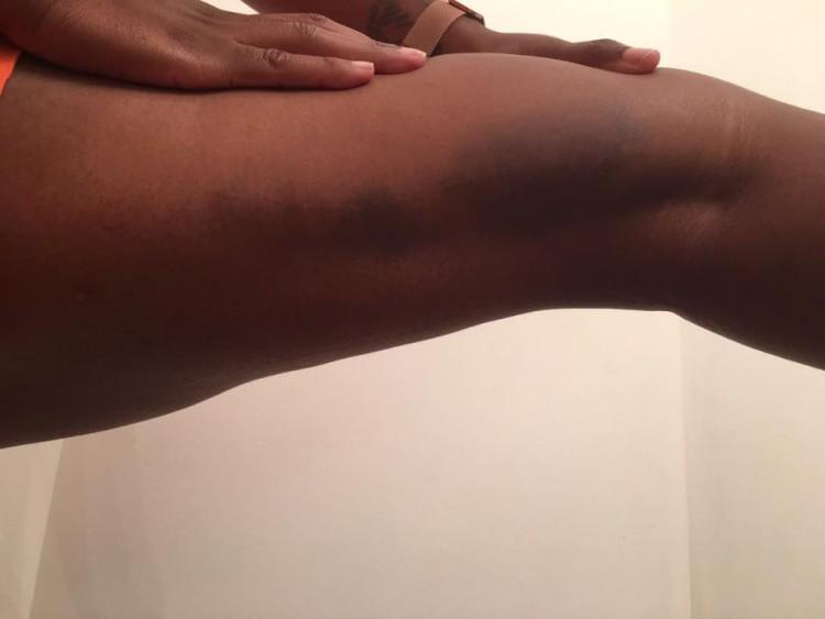 pierna de la mujer con moretones