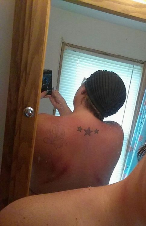 woman's back after having gua sha done with her massage