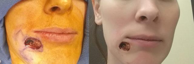 Kari Cummins skin cancer feature