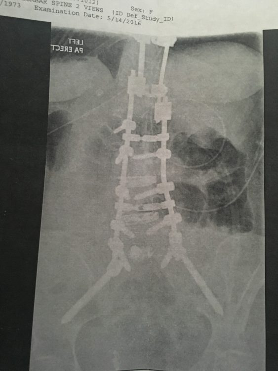 x ray of back and spine after surgery