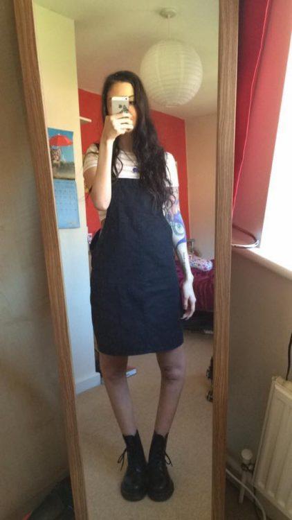 woman taking mirror selfie showing hyperextension of knee