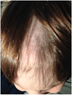 young boy trichotillomania bald patch on head