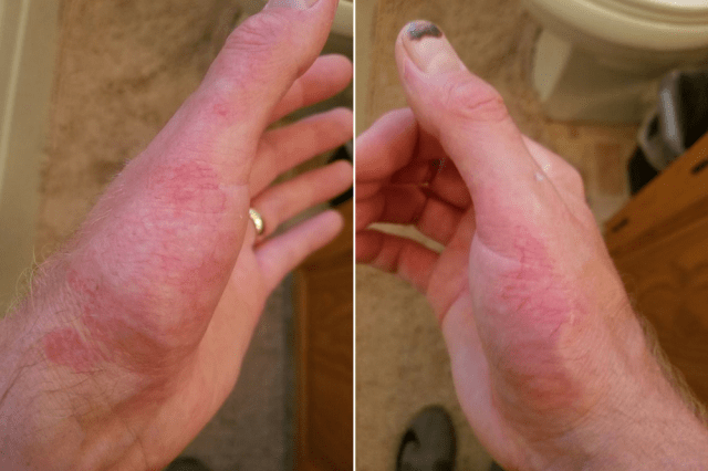 man's hands with red skin irritations