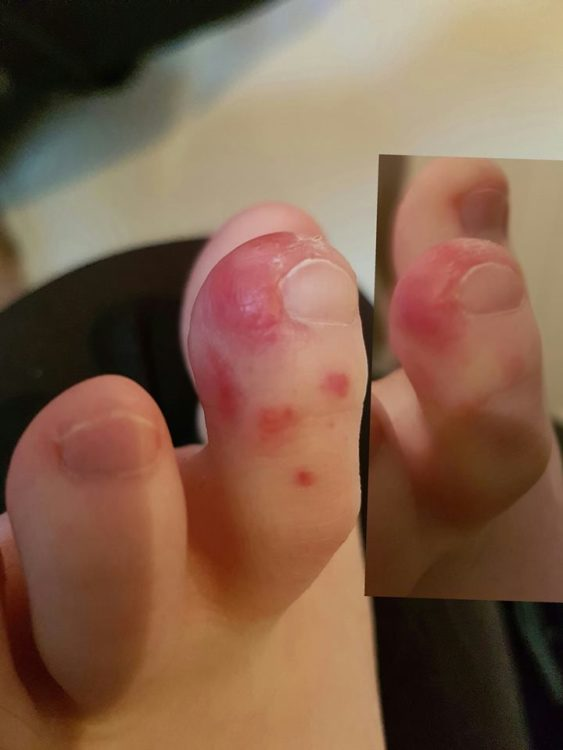 chillblains on a person's toes