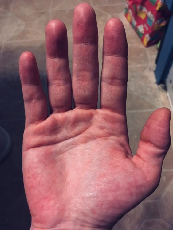 a person's hand looking very red