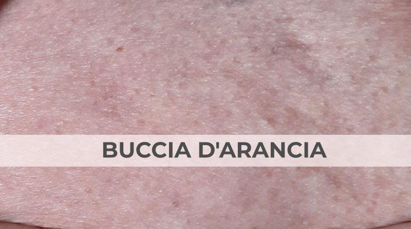 Medicina-Estetica-dott-Letizia_Foglieni_cellulite_buccia-arancia-the-minutes-fly