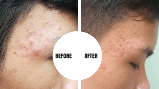 Skin Care Routine for Teens - Before and After Photos