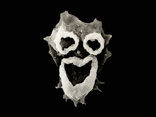 Amoeba (Naegleria fowleri) showing the feeding structures or pseudopods that form a face-like appearance. This freshwater protozoan parasite causes a type of amebiasis infection that is usually fatal called primary amebic meningoencephalitis. SEM