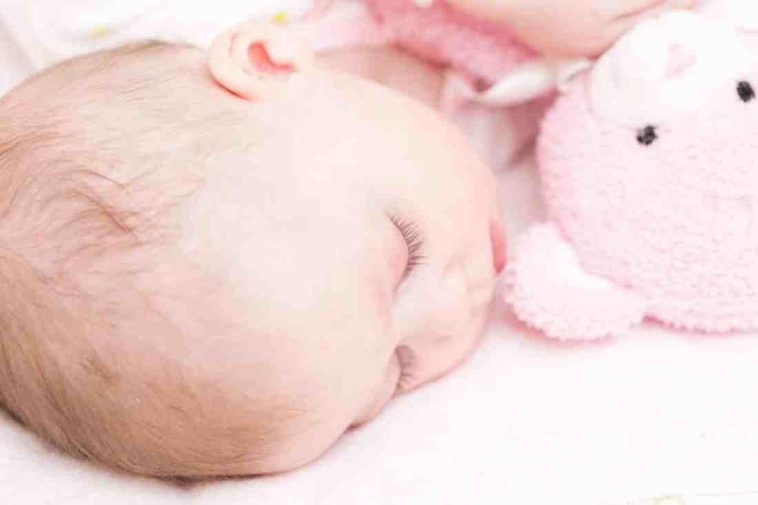 Baby cradle cap treatment