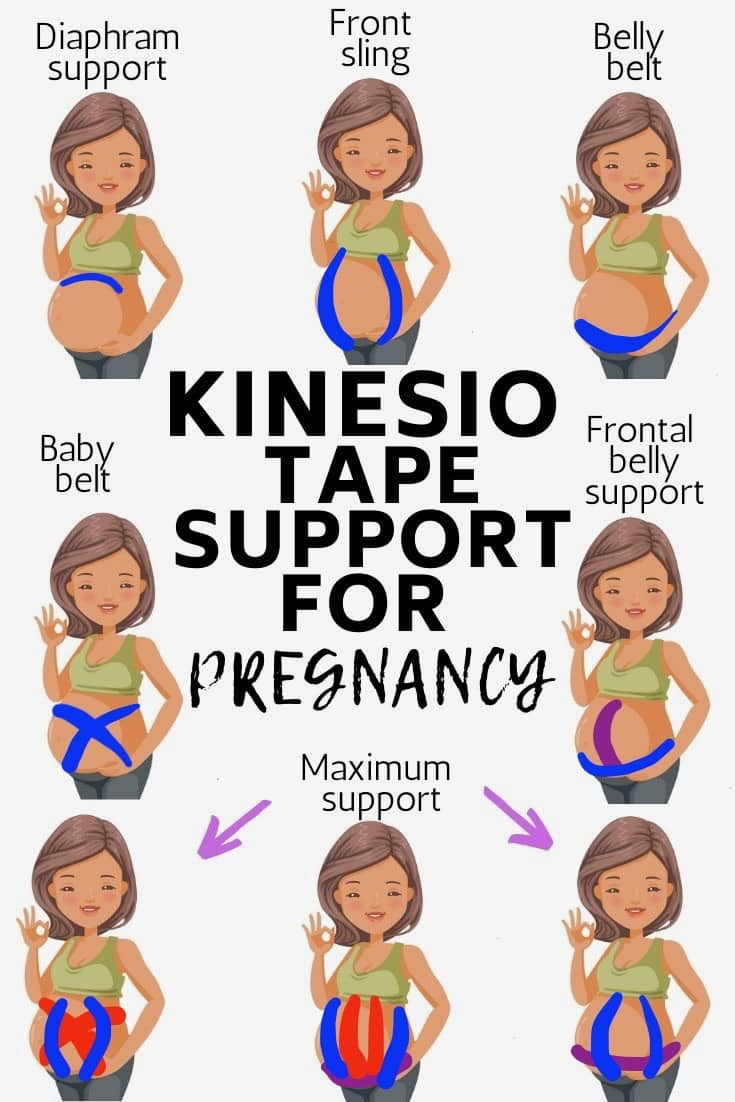 kinesiology tape support for pregnancy