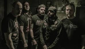 skinless band