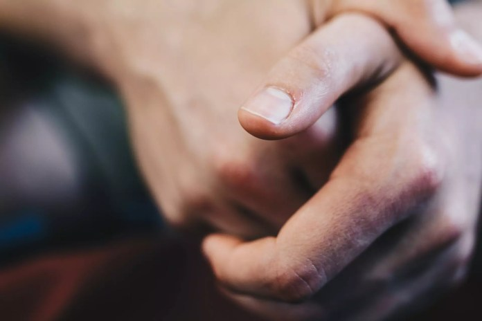 Yellow Fingernails Causes & How To Treat Them At Home