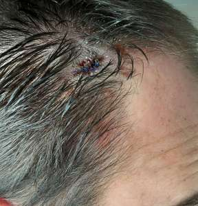 surgical wound after biopsy surgery