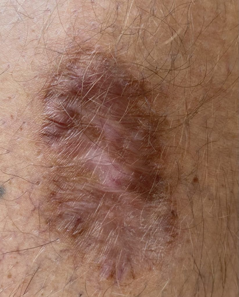 Scar from squamous cell carcinoma removal