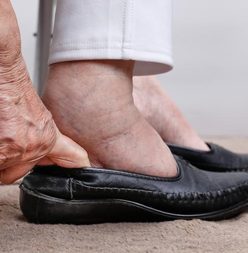swollen from pathogens nhcaa