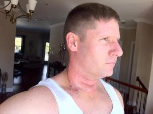 Steve Barnes Post Cancer Surgery