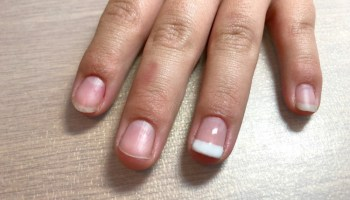 A Bio Sculpture Update - Choosing The Lengthening Course