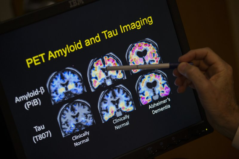 Report finds few seniors are getting routine memory checkups