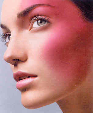 Best Natural Treatments for Rosacea