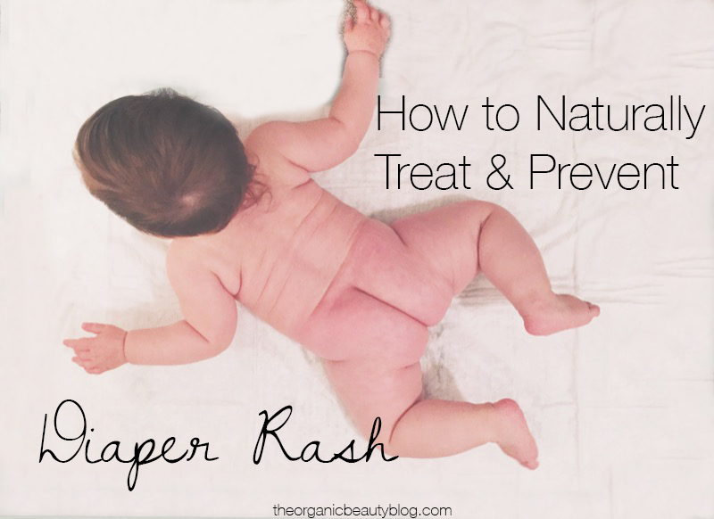 How to Naturally Treat and Prevent Diaper Rash