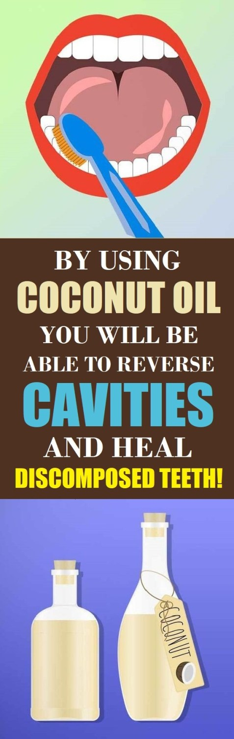 reverse cavities with coconut oil