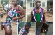 Woman Boils Eight-Year Old Househelp with Hot Water for Licking Milk