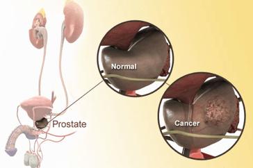 wpid-WEBMD_prostateschematic-2014-11-7-09-56.png