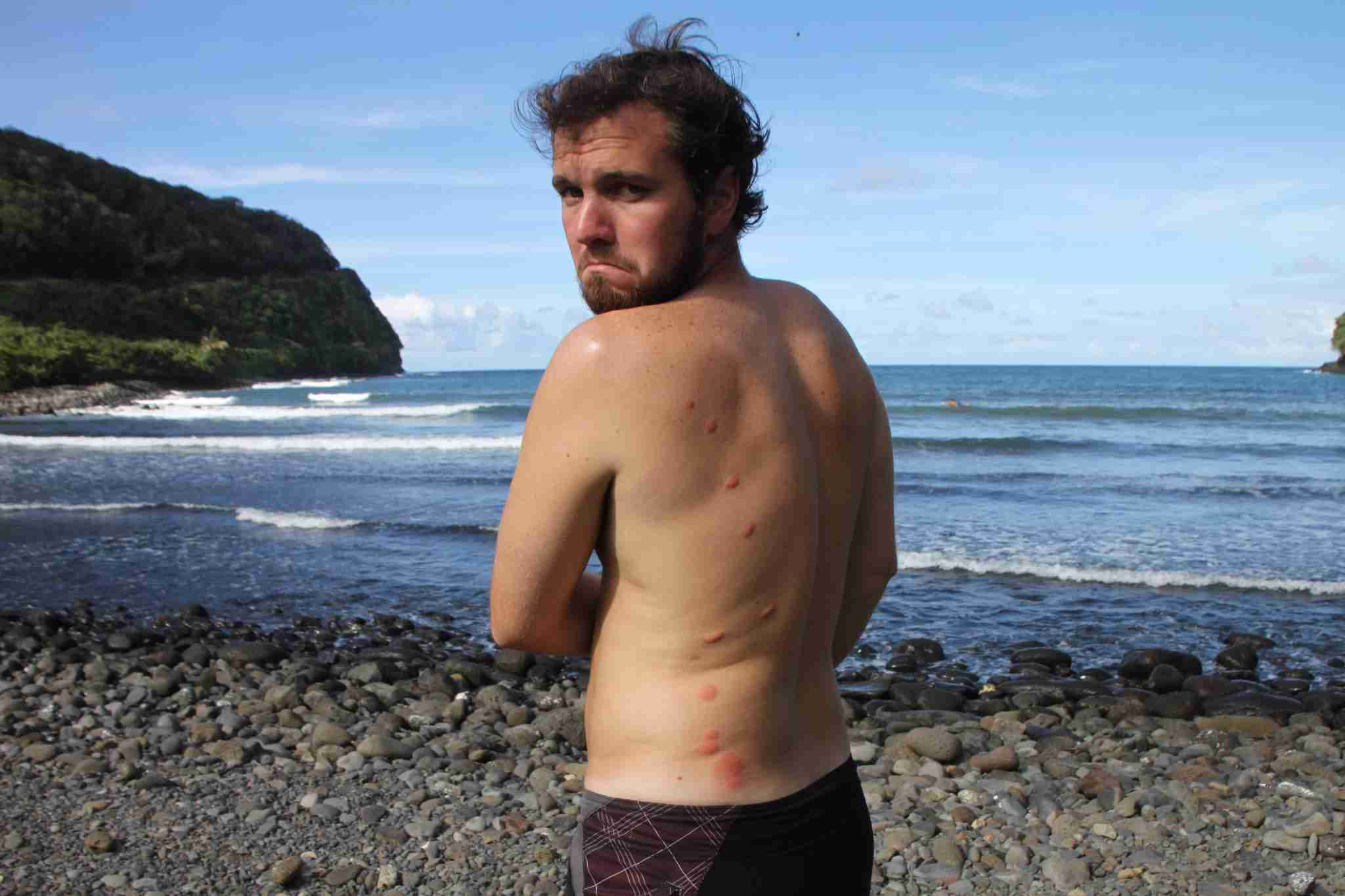 From my first and worst bed bug attack - a hostel in Maui in 2010.