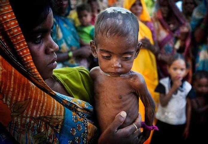 India is Still Battling Hunger