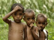 India tops the list, 31 per cent children in India stunted: Study