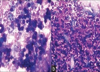 An Unexpected Host in a Soft‑Tissue Lesion of Thigh. the policy times