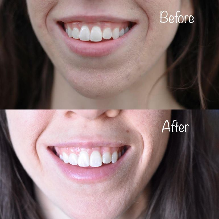 best-at-home-teeth-whitening-9