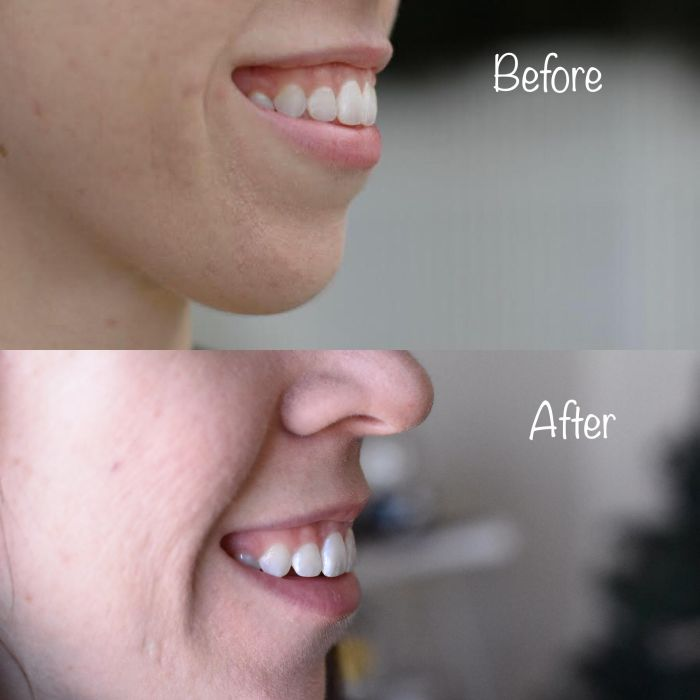 best-at-home-teeth-whitening-10