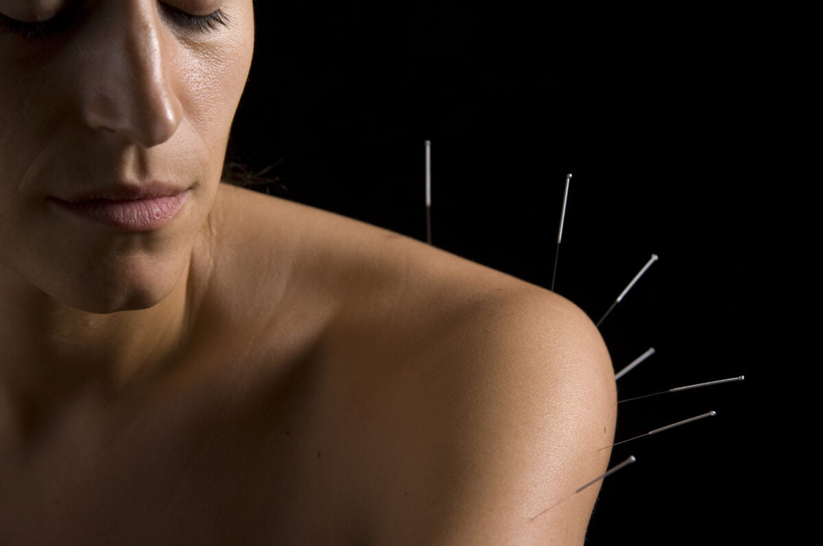 Acupuncture services in Calgary