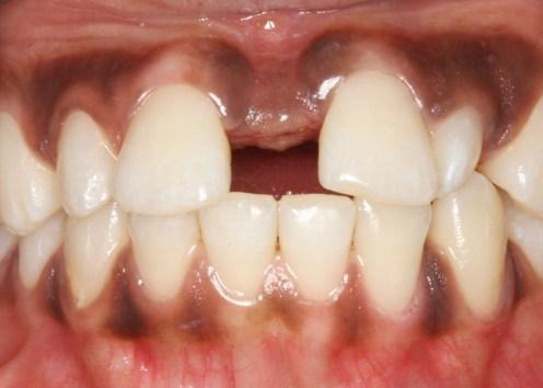 Large initial diastema