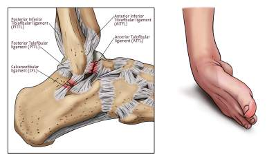 ankle sprain, ATFL ligament, ankle, pain