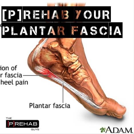 Plantar Fasciitis Prehab