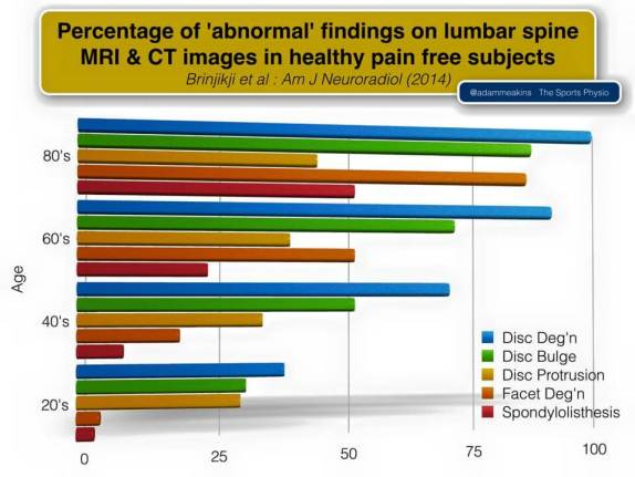 MRIs for low back pain