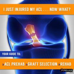 ACL graft options IG
