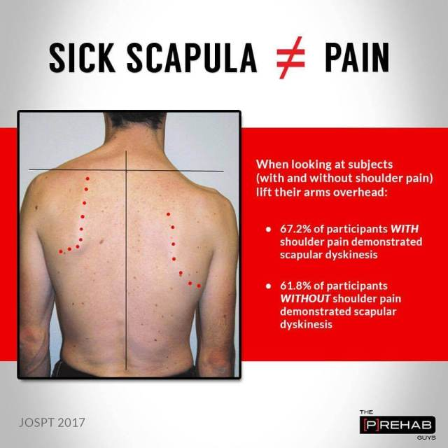 Does sick scapula equal pain