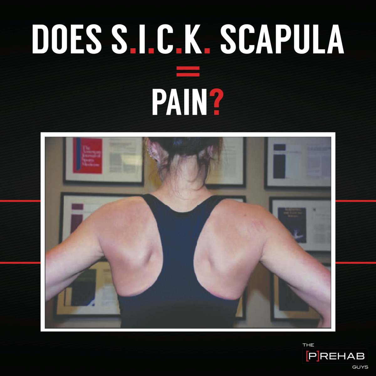 Does SICK Scapula Equal Pain?