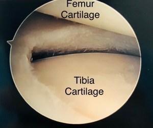 meniscus normal rehab