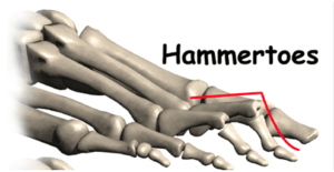 hammer toes exercises to improve foot strength