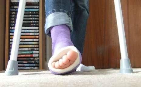 ankle cast the prehab guys