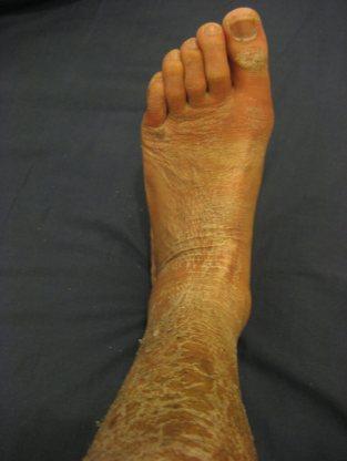 cast off foot the prehab guys