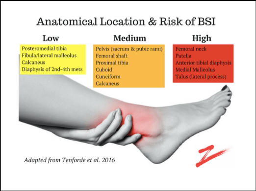 location and risk of bone stress injuries prehab guys