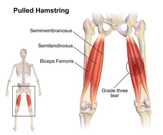 Hamstring Strains Prehab