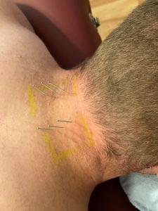 dry needling cervical spine prehab guys